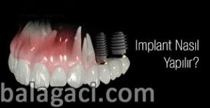 implant tedavisi, implant vida yerleşimi, Dental implant