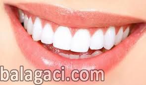 zirkonyumun kalitesi, zirkonyum uygulaması, Diş kaplamaları