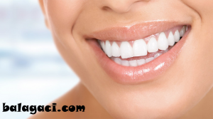 implant, diş hekimi, implant istanbul