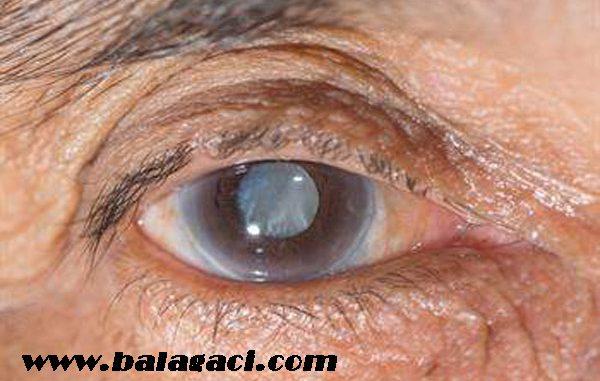 katarakt tedavisi nasıl yapılır, katarakt belirtileri nelerdir, katarakt nasıl anlaşılır