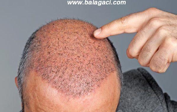 doğal saç ekimi, doğal saç ekim fiyatları, doğal yöntemlerle saç ekimi
