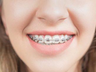 diş teli
