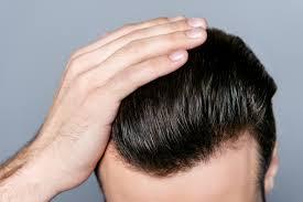 saç ekim doktoru, uygun fiyatlı saç ekimi, saç ekim doktoru tercihi