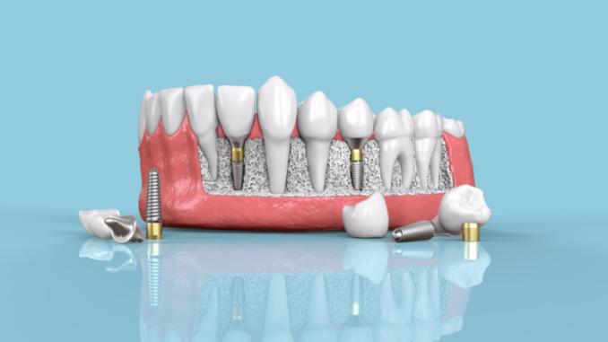 implant fiyatı, implant yaptırma, ucuz implant