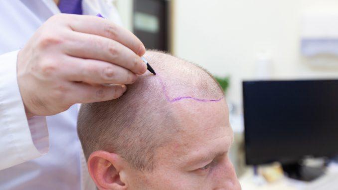 saç cerrahisi, saç cerrahisi ne iş yapar, saç cerrahisi nedir