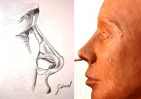 Burun Estetiği, Rinoplasti , Burun Estetiği Ameliyatı 21