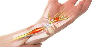 karpal tünel sendromu, karpal tünel sendromu nedir, karpal tünel sendromu tedavisi